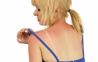 Sunburn Prevention and Relief